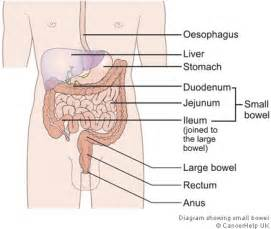 what percentage of mes found in the colon picture 6
