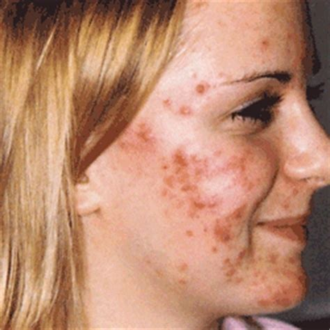 dry skin acne picture 3