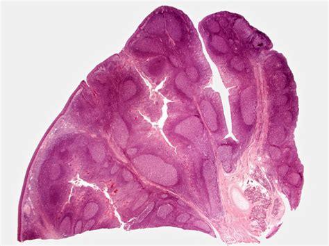 cryptic tonsil debris picture 6