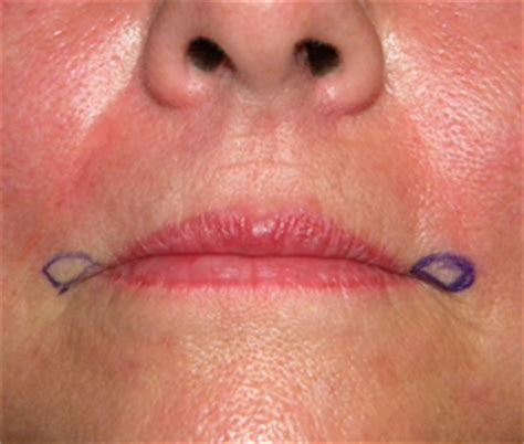 corner of mouth wrinkles picture 5