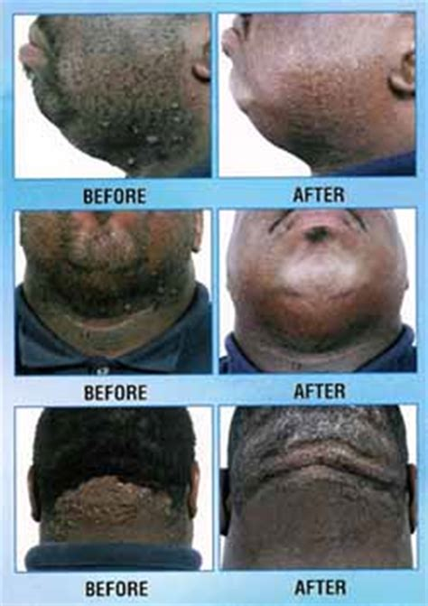 revitol hair removal and african american picture 18