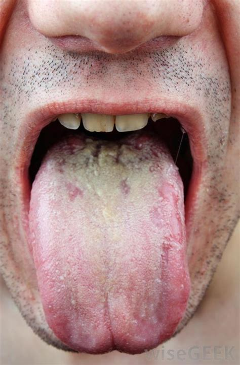 yeast infection of the mouth picture 19