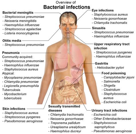 what are bacterial infections picture 1