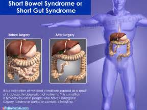 short bowel syndrome picture 1