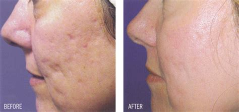 fraxel laser for acne scarring picture 7
