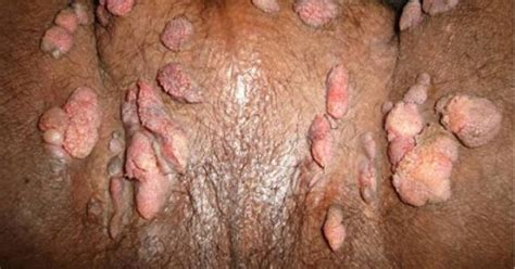 risks of transmitting genital warts from a male picture 12