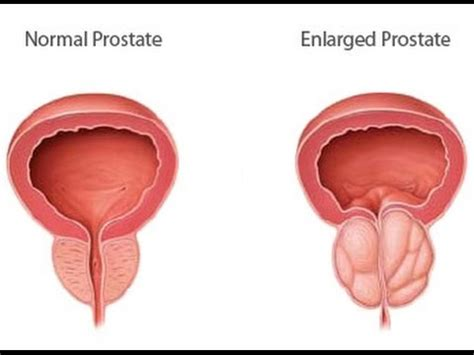 free trail cure for enlarged prostate picture 11