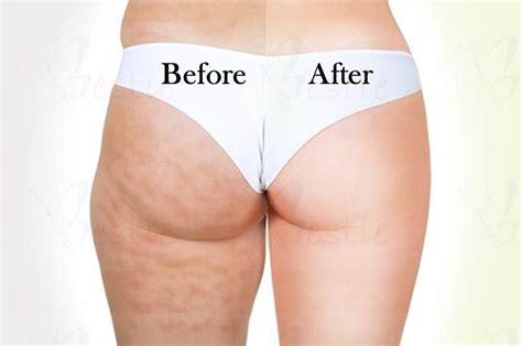 clarins cellulite cream picture 2
