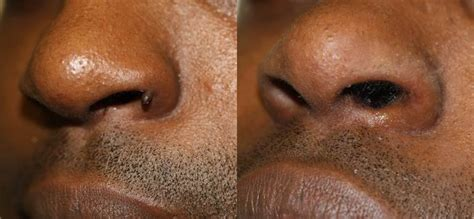 cost to remove a wart on face picture 14