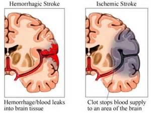 can meningitis xause blood clotts in brain? picture 2