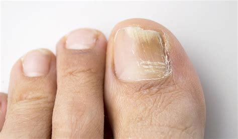 circulation and toenail fungus picture 2