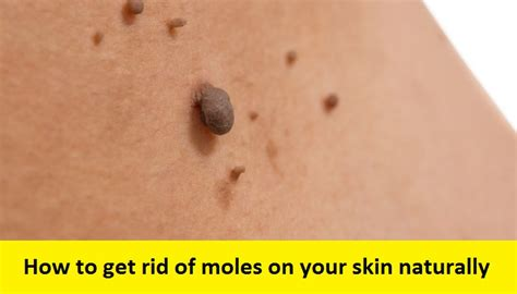 home remedy to remove moles and warts picture 1