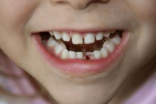 children's normal teeth images picture 1