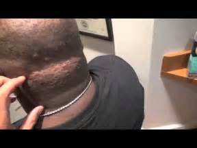 acne on the back of my head picture 7