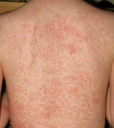 fungal skin rashes picture 6