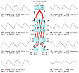 blood flow volume measurement picture 2
