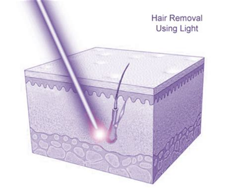 permanent hair removal mercury drug picture 14
