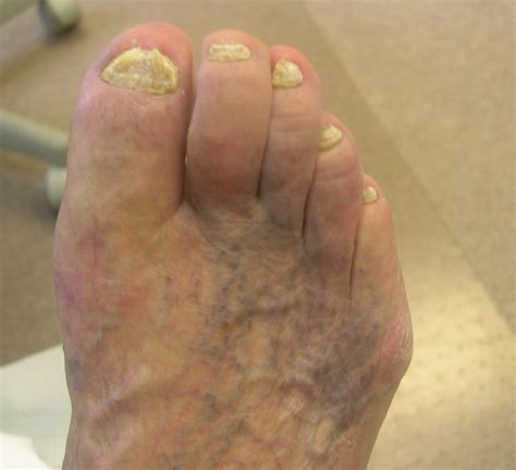 can they put you asleep for bunion surgery picture 11