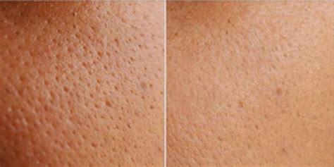 skin pores picture 9