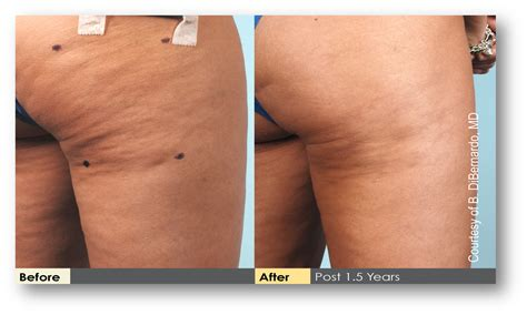 cellulite and laser insute picture 10