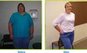 bcbs of texas weight loss requirements picture 7