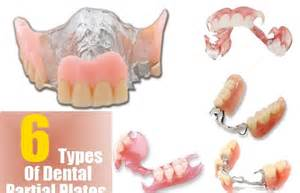 different types of false teeth picture 7
