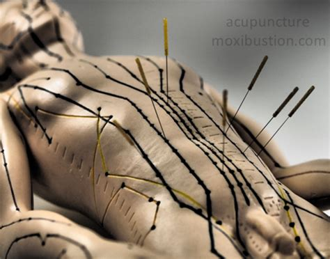 acupuncture for appetite control picture 2