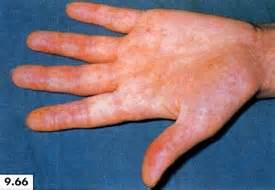 niacin causing herpes outbreak picture 2