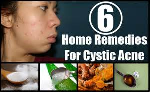 what is the herbal supplement for cyst? picture 15