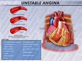 Angina high blood pressure picture 17