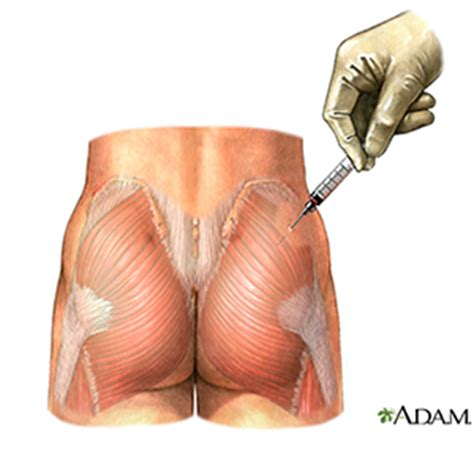 deltoid muscle injections picture 2