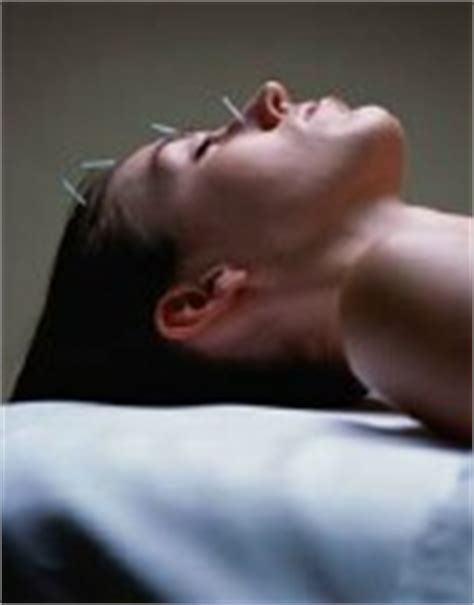 acupuncture better than drugs for acne picture 19