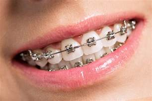 teeth whitening san francisco picture 2