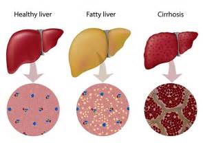 nonalcoholic fatty liver disease picture 14