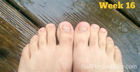 treating toe nail fungus picture 2