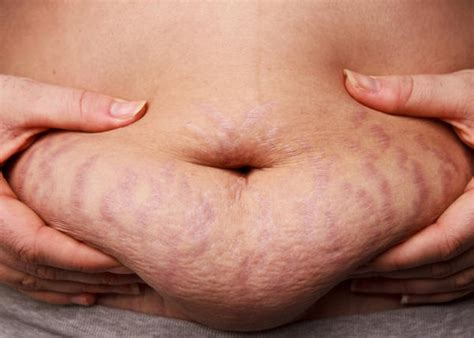 stretch marks lifting weights to heal them picture 10