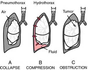 Causes of sudden drop in blood pressure picture 15