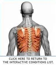 back rib muscle pain picture 2