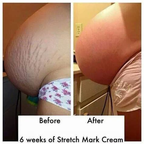 does salonpas wok for stretch marks picture 6