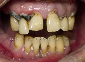 effects of marijuana on teeth picture 3