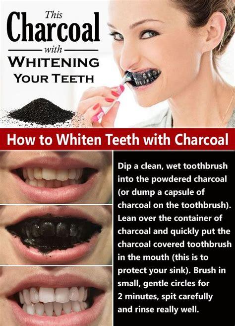white overnight teeth whitener picture 13