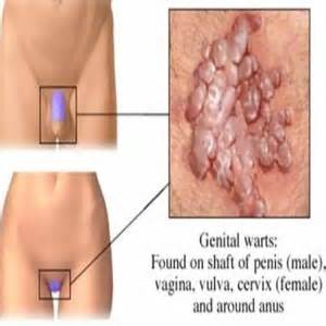 vaginal wart symptoms picture 14
