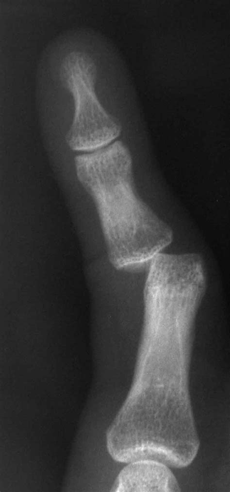dislocation of a joint picture 5