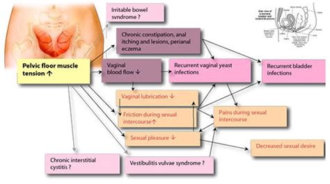 for pelvic muscle spasm picture 18