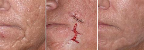 cost of co2 laser for acne scars picture 7