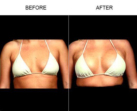 breast augmentation in orlando fl picture 1