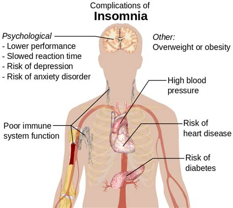 anxiety and chronic insomnia picture 3