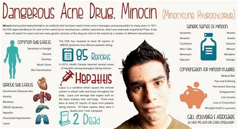 minocycline for acne treatment picture 2