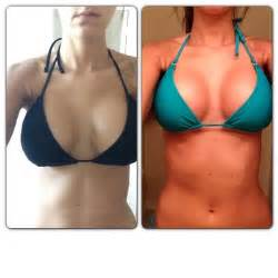 breast augmentation and complications and hematoma picture 7
