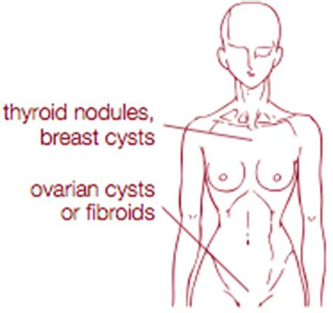 formulas for breast cysts picture 1